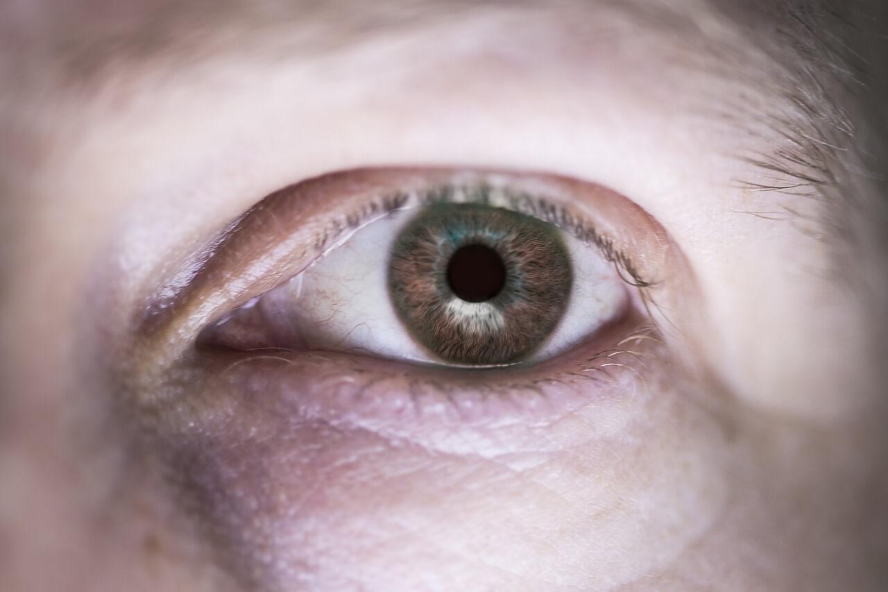Plastyka powiek górnych i dolnych – na czym polega zabieg blefaroplastyki?